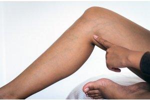 Prévenir et soigner naturellement la varice